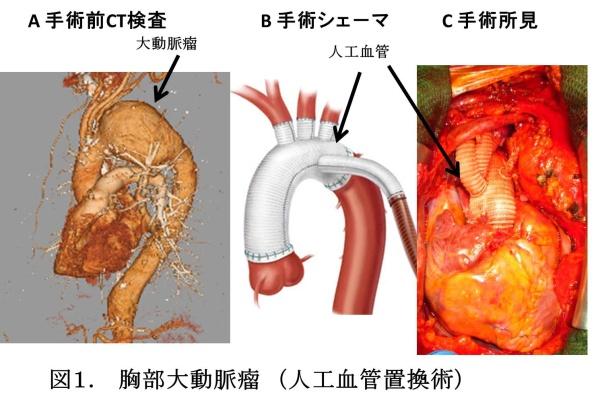 大動脈疾患   横浜市立大学附属病院